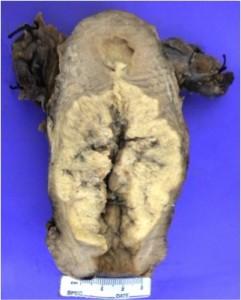 macroscopico-utero-celulas-clara