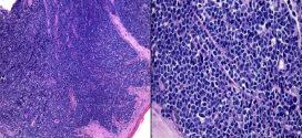 Tumor en región vulvar (caso I)